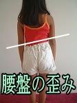 骨盤歪み-兵庫県伊丹市整体カイロプラクティック